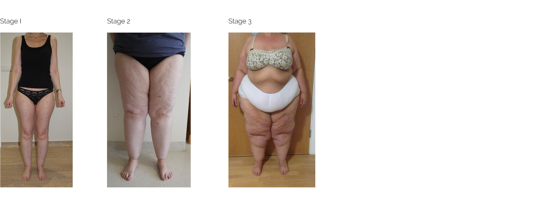 Lipoedema-Stages
