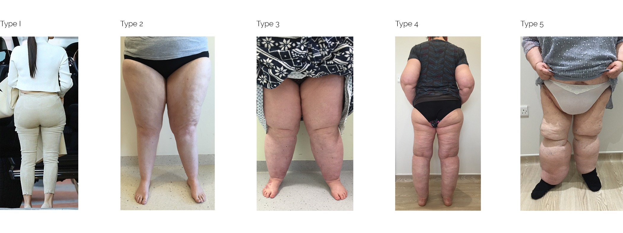 Lipoedema Treatment from the The Karri Clinic, East Yorkshire