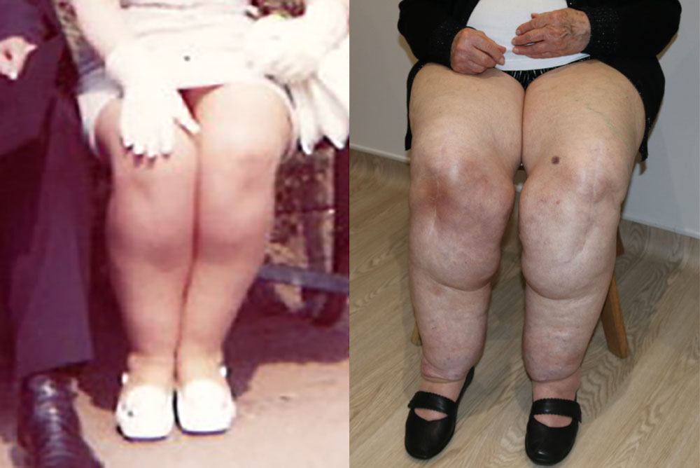progressive nature of lipoedema