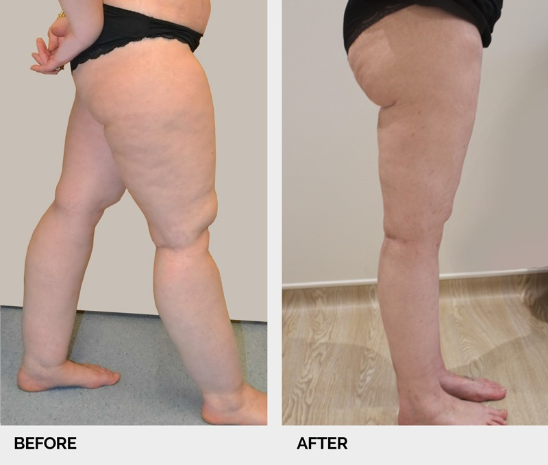 lipoedema before and after right lateral view legs