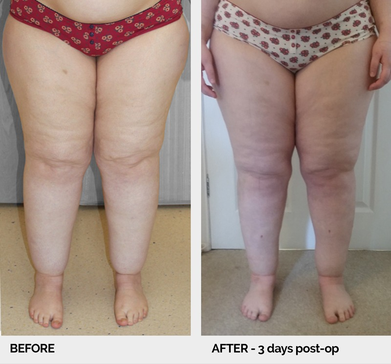 lipoedema before and after ap