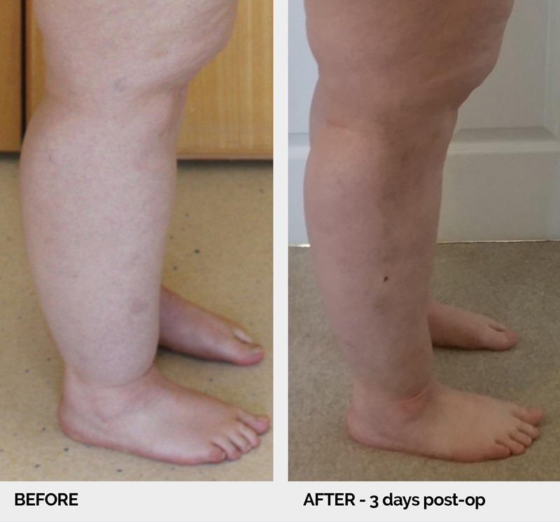 lipoedema before and after legs right lateral