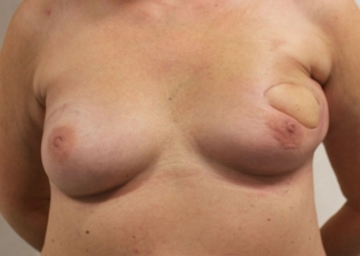 Breast Lumpectomy Reconstruction - Before surgery