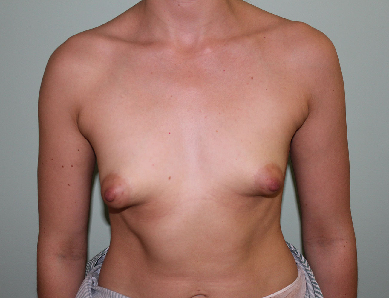 Fogarty Plastic Surgery  Northern Ireland Breast