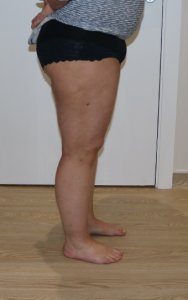 thigh leg liposuction after picture right lateral view