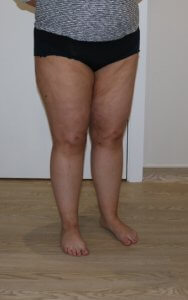 thigh leg liposuction after picture right oblique view