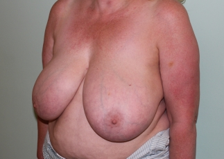 breast reduction before picture left oblique