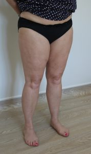 thigh leg liposuction after picture right oblique