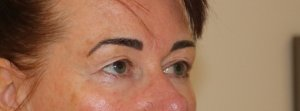Image of upper blepharoplasty before surgery right oblique view
