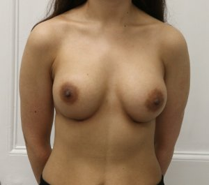 Breast enlargement after AP view