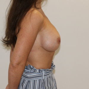 Breast enlargement after surgery right lateral view The Karri Clinic