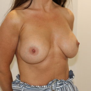 Breast enlargement after surgery right oblique view The Karri Clinic
