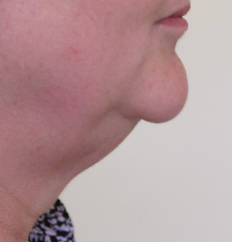 Witch's chin deformity