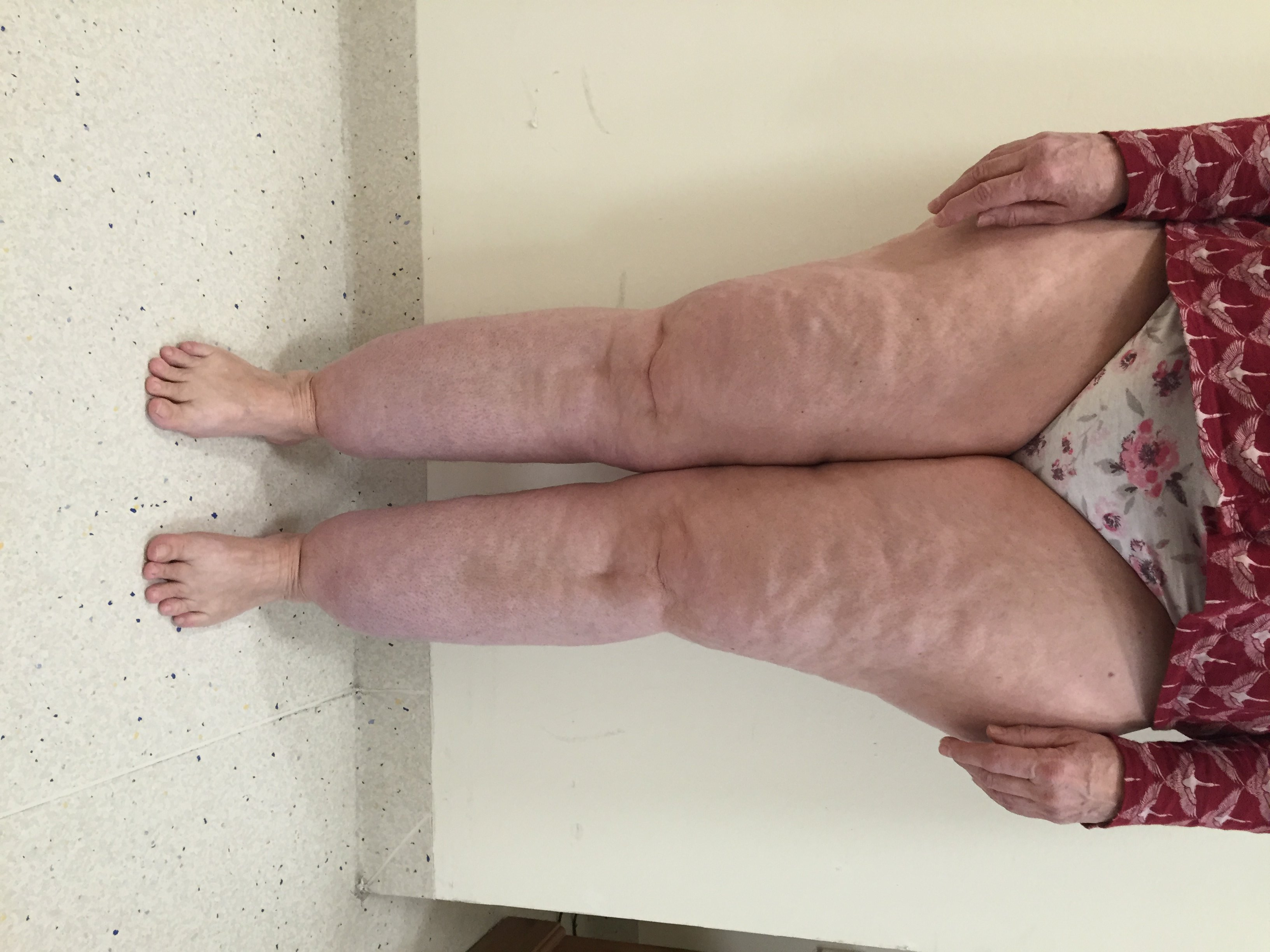 Lipoedema-Type-III-Stage-II-before-AP-view