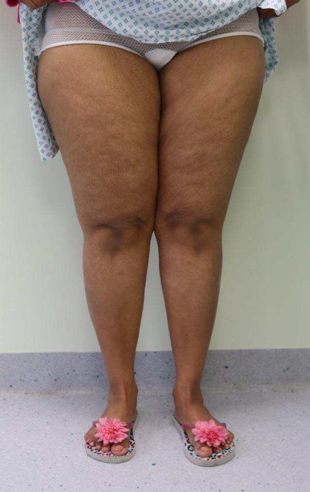 Lipoedema (Type II) liposuction