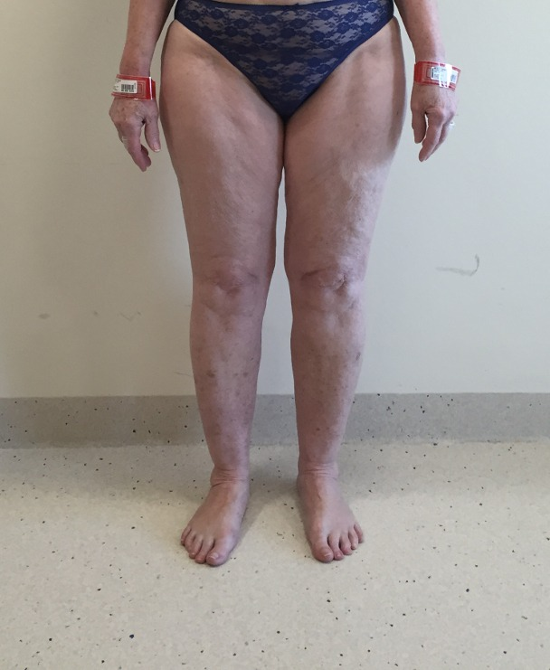 Lipoedema Type IV Stage I before liposuction