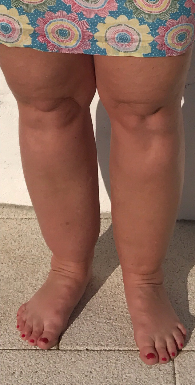 Lipoedema-before-and-after