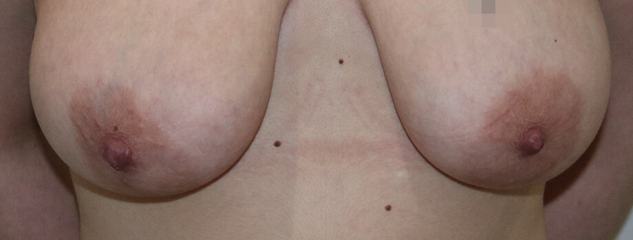 Areola reduction before photo