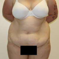 High lateral tension tummy tuck appearance before surgery