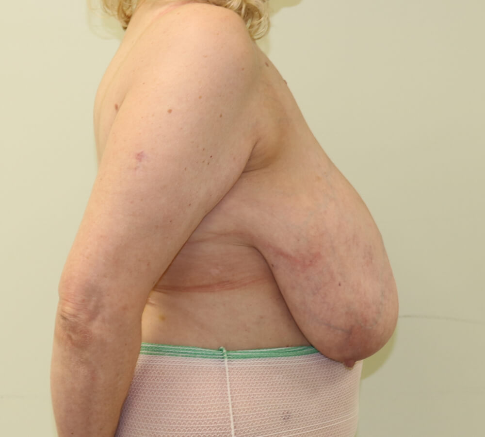 breast reduction photos before crofton