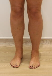 Cankle liposuction before