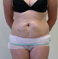 Tummy tuck before surgery
