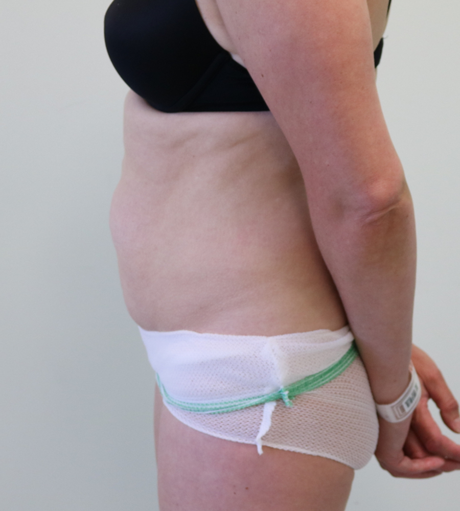 how to pay for a tummy tuck