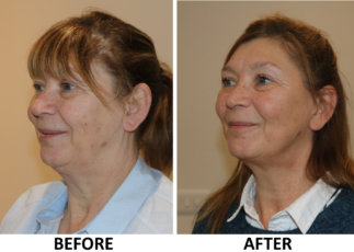 Facelift before and after photos