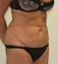 High lateral tension tummy tuck before surgery