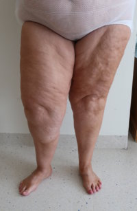 Lower limb lipoedema liposuction before surgery AP view