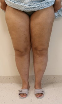 Lower limb lipoedema liposuction before surgery