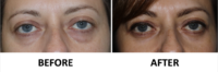Transconjunctival lower blepharoplasty and TCA peel AP view