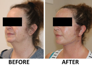 Facelift The Karri Clinic