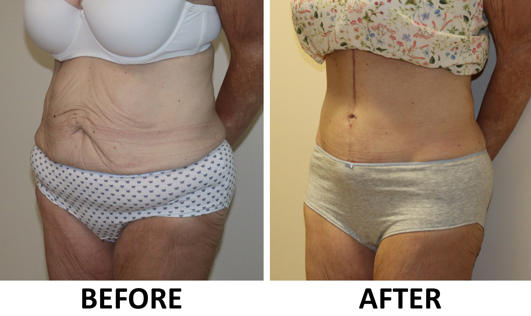 Fleur de lis tummy tuck before and after