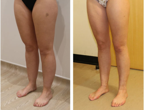 Lower limb liposculpture