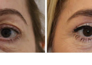 Upper blepharoplasty before and after