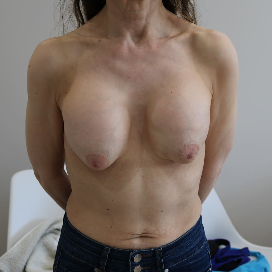 capsular breast to contraction soften How