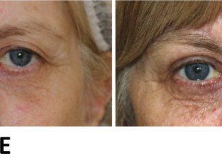Direct brow lift and upper eyelid lift (blepharoplasty) before and after