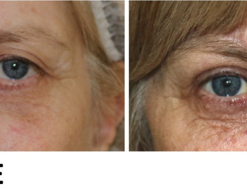 Upper Blepharoplasty