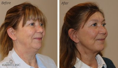 Facelift at The Karri Clinic