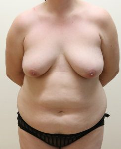 Mummy makeover, breast lift (mastopexy), breast fat grafting & Brazilian tummy tuck before surgery