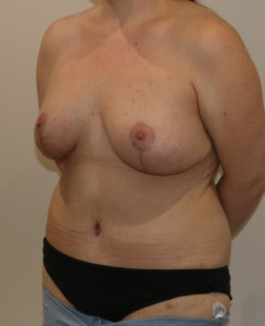Mummy makeover, breast lift (mastopexy), breast fat grafting & Brazilian tummy tuck after surgery