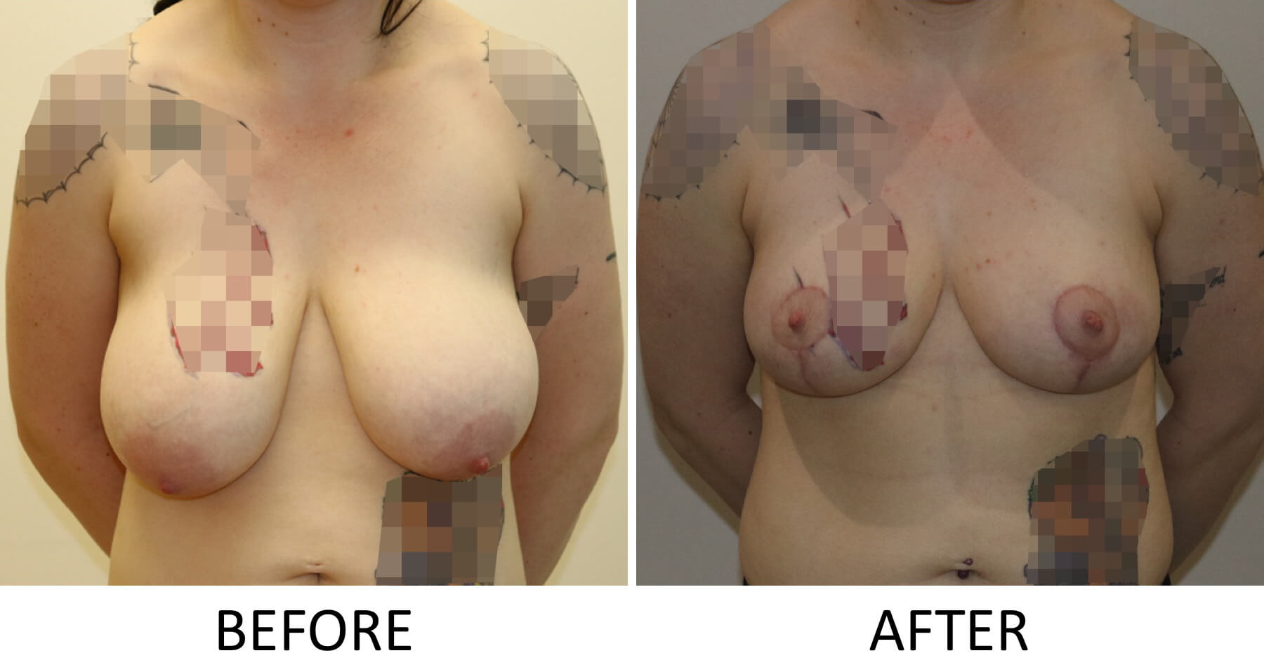Mastopexy before and after