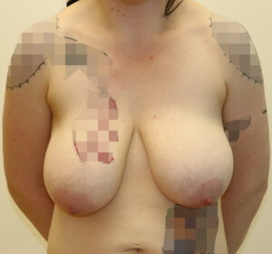 Mastopexy before surgery