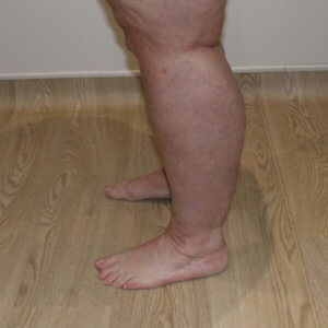 Lower limb lipoedema liposuction after surgery left lateral view