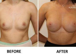 Breast enlargement