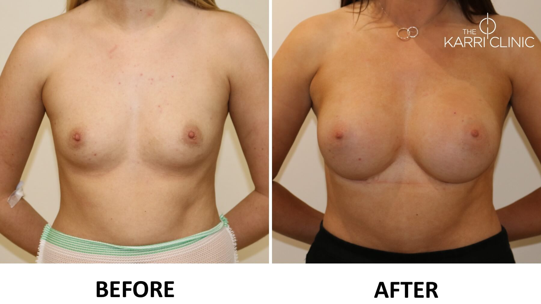 Read about breast enlargement the