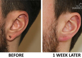 Earlobe flesh tunnel repair before and after