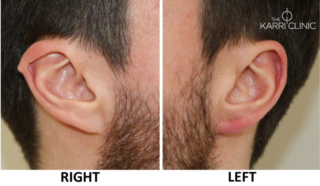 Earlobe flesh tunnel repair right and left ears