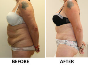 Brazilian tummy tuck before and after photos left lateral view